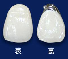 前歯:メタルセラミック