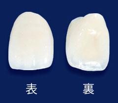 前歯:オールセラミック