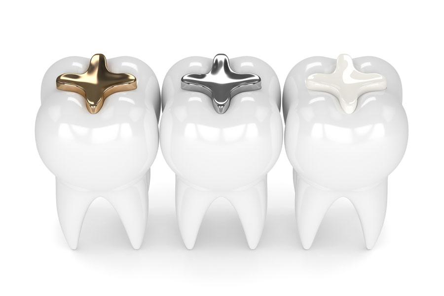 歯科治療で使う素材イメージ