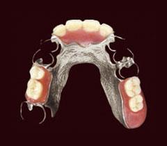 部分入れ歯:コバルトクロム床義歯