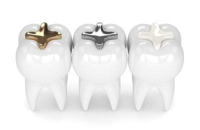 歯の治療で使われる素材の話