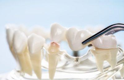 歯のブリッジ