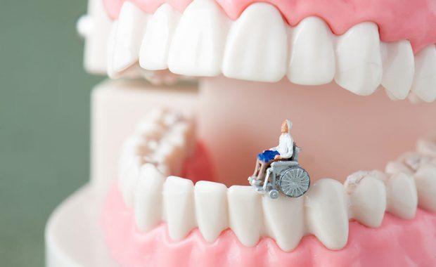 歯の衰えイメージ