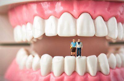シニアと歯